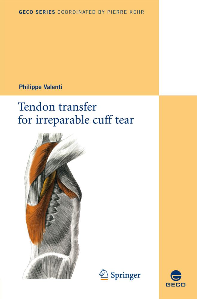 Tendon transfer for irreparable cuff tear als Buch (kartoniert)