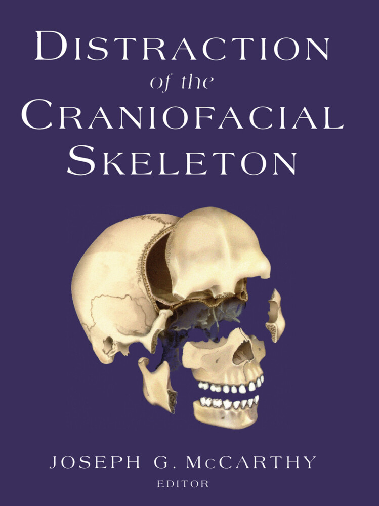 Distraction of the Craniofacial Skeleton als Buch (gebunden)