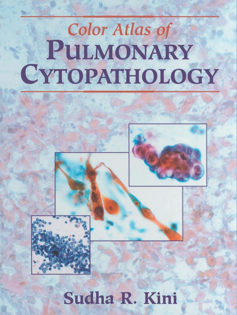 Color Atlas of Pulmonary Cytopathology als Buch (gebunden)