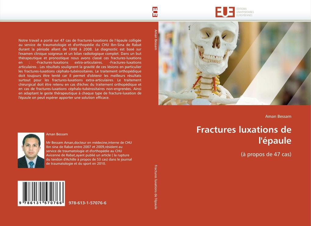Fractures Luxations de l''épaule als Taschenbuch