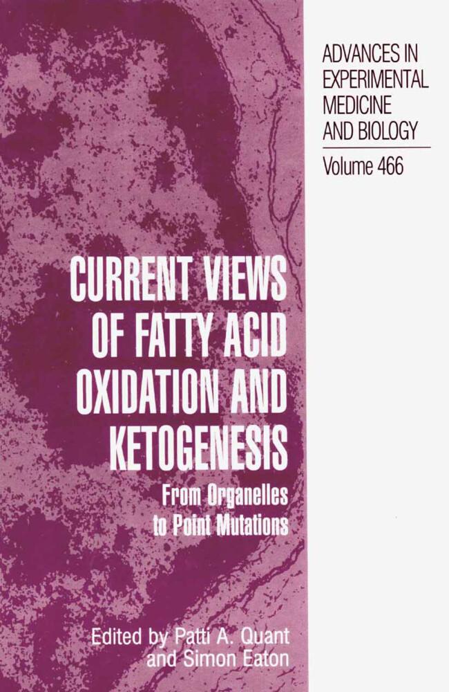 Current Views of Fatty Acid Oxidation and Ketogenesis als Buch (gebunden)