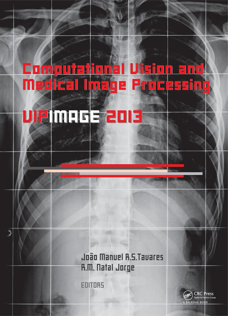 Computational Vision and Medical Image Processing IV als eBook pdf