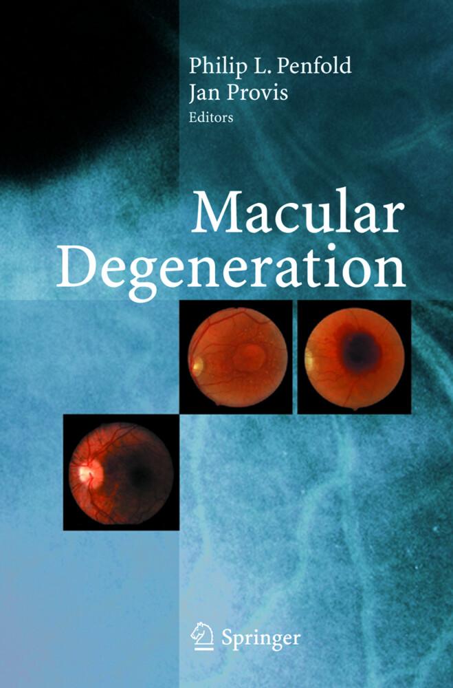 Macular Degeneration als Buch (gebunden)