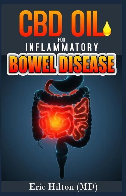 CBD Oil for Inflammatory Bowel Disease: Effective Remedy for Ibd, Using the Powerful CBD Oil and Nutrition Tips to Manage Ibd als Taschenbuch