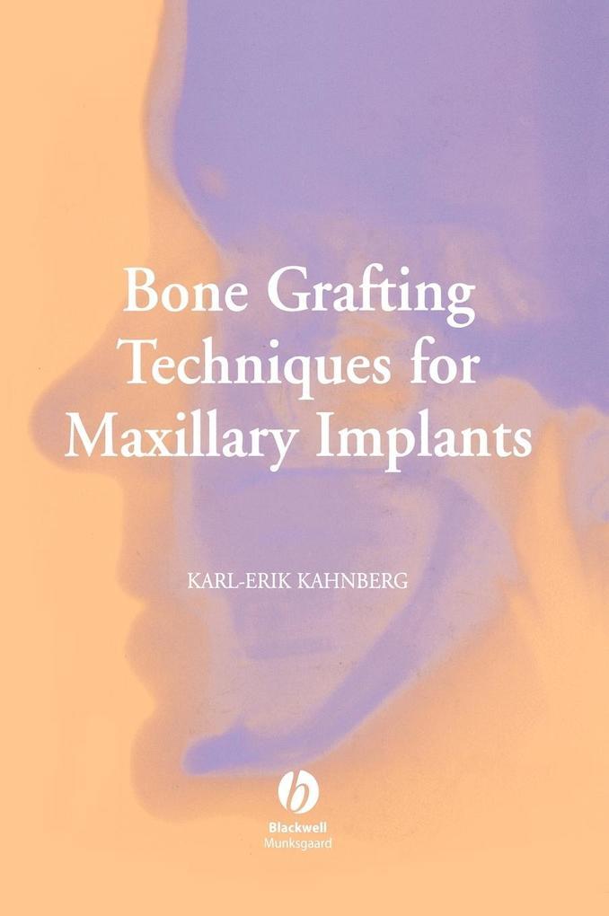 Bone Graft Maxil Implants als Buch (gebunden)