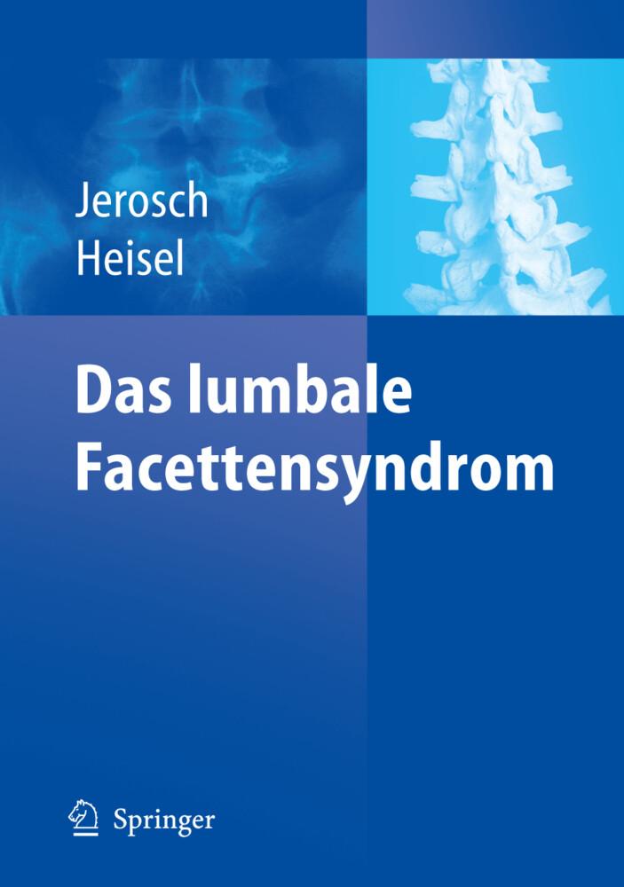 Das lumbale Facettensyndrom als Buch (kartoniert)